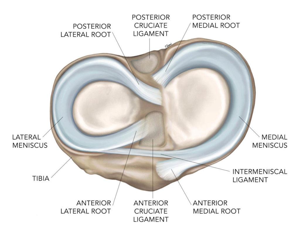 Meniscal Root Tear